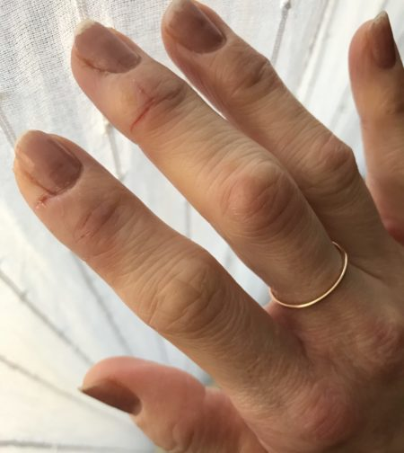 フランスで第一関節の腫れ