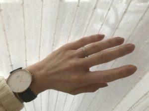 指の関節の膨らみ リウマチ科