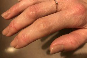 指の第一関節の膨らみ リウマチ科